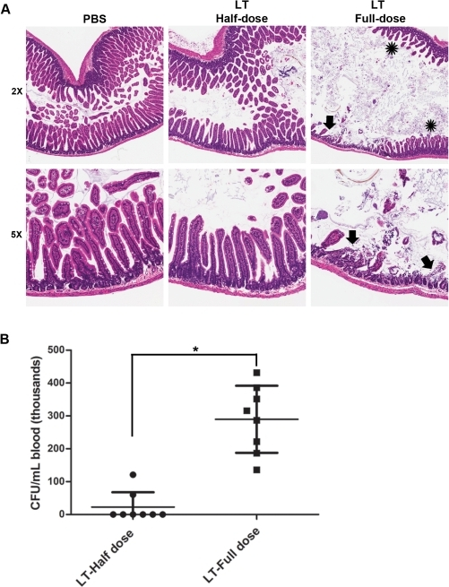 Dose-dependent effects of anthrax LT on the intestinal barrier.(A) C57BL/6J mice were injected intravenously with PBS (control, n = 5), 100 µg PA/40 µg LF (n = 10), or 200 µg PA/80 µg LF (n = 10). LT-treated animals were euthanized when they became moribund, each with a simultaneously euthanized PBS-treated control. Samples from the small intestines of these animals were analyzed by H&E staining. Representative sections from a control animal and animals from each of the two LT-dose cohorts are shown; all animals in each cohort showed similar histological findings. Aperio ScanScope-acquired images are shown at 5×. Arrows indicate mucosal ulcerations and asterisks identify the area of villous blunting. (B) C57BL/6J mice were injected intravenously with 200 µg PA/80 µg LF (n = 8) or 100 µg PA/40 µg LF (n = 8) as shown. Cardiac blood samples were collected when the mice became moribund. Bacterial count data are shown (mean ± SD; * p<0.001, Student's t-test).