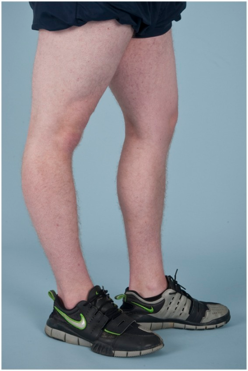 Knee hyperextension (genu recurvatum) in a male patient ...