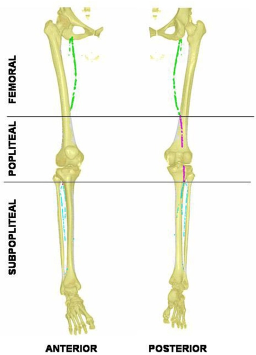 Anterior and posterior 3D-views of lower limb arterial calcification in pseudoxanthoma elasticum revealed with helicoidal X-ray tomodensitometry. Calcification in the femoral artery is tagged in green, the popliteal in purple, and the visible distal arteries are tagged in blue. Note the absence of calcifications within the middle popliteal segment.