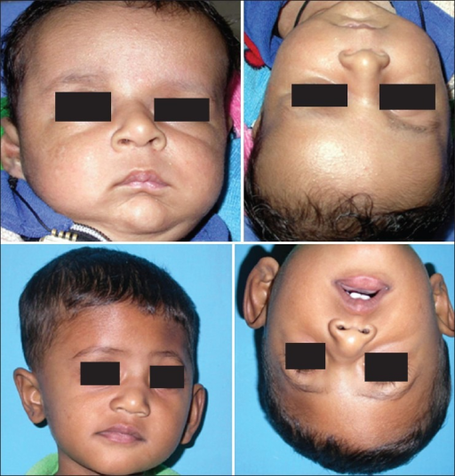 a case of positional plagiocephaly showing upper row open i