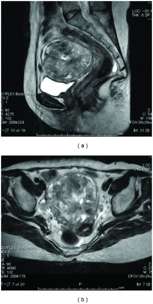 MRI (T2-weighted) revealed a heterogeneous solid tumor of 77 × 76 mm.