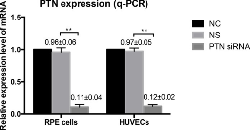 Effect of PTN-siRNA on RPE cells and HUVECs.PTN expression in human RPE cells and HUVECs was significantly knocked down in PTN-siRNA treated groups at the mRNA level, as measured by real-time RT-PCR 48 h after transfection. There's no difference in NC and NS groups. The expression of NC was set to 100%. Data are expressed as the means ± SD of results from at least three independent experiments (**P < 0.01).