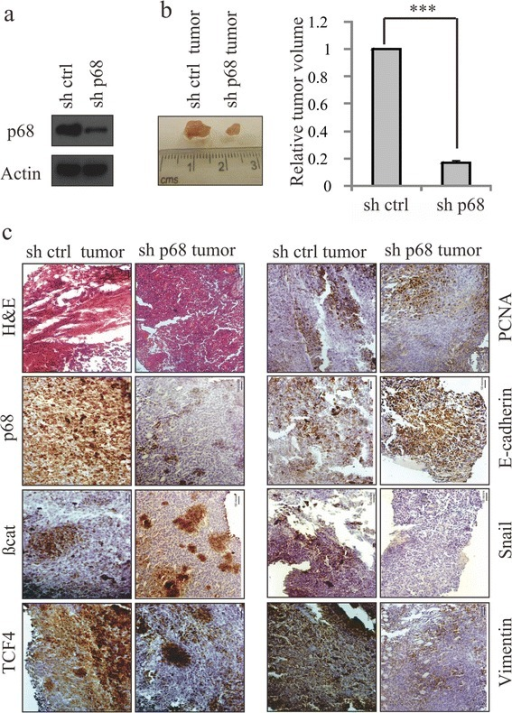 p68 knockdown reduces breast tumour volume and expression of EMT markers in mice. (a) p68 expression level was determined in p68 knockdown mouse 4T1 stable cells. Control short hairpin RNA (shRNA)-4T1 stable cells were kept as control. (b) Images of mouse breast tumours after 16 days of injections in the mammary fat pad regions with stable cells expressing either control shRNA or p68 shRNA. Tumours obtained from the mammary fat pad regions were analysed for tumour volume (right panel). (c) Images of the hematoxylin and eosin (H&E)-stained sections of the tumours and immunohistochemical analysis of the adjacent sections were performed with the indicated antibodies as shown in the figure. Images were captured at magnifications of 200X.