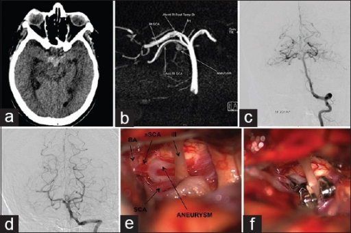 (a) A 38-year-old women presented with SAH in the interpeduncular cistern. Initial DSA showed no aneurysm. (b-d) Computerized tomography angiogram and DSA done 6 weeks later showed a fusiform aneurysm arising from an accessory superior cerebellar artery (aSCA), which took origin from the basilar artery distal to the main SCA (e and f) Intraoperative pictures of the surgical field through a temporopolar approach, showing a fusiform aneurysm arising from the aSCA, which was then trapped (BA: Basilar artery, SCA: Superior cerebellar artery, aSCA: Accessory superior cerebellar artery, III - oculomotor nerve)