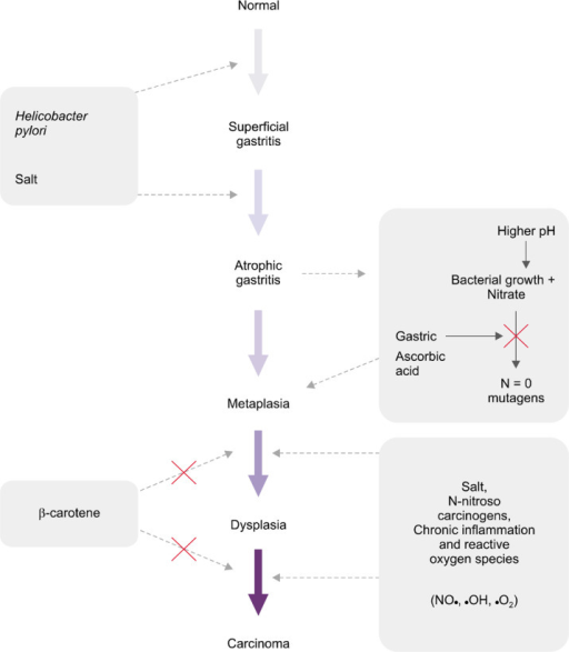 Correa's theory regarding human gastric carcinogenesis: a multistep and multifactorial process. Gastritis begins from superficial gastritis and progresses into atrophic gastritis, metaplasia, dysplasia and gastric cancer. Adapted from Correa et al.15