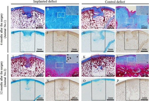 Histopathology of osteochondral defects using Masson's trichrome, alcian blue, and immunohistochemical staining of type II collagen. In animal no. 1, the articular surface was smooth and fibrocartilage developed on the subchondral bone at the implanted site (A, B, E, F), whereas the surface was irregular and fibrous tissue lay over the subchondral bone at the control site (C, D, G, H). At the implanted site in animal no. 2, the subchondral bone was symmetrically reconstructed and was covered by matrix including hyaline cartilage, which was suggested by the clusters (arrowhead) and columnar clusters (arrow) of cells (I, J, M, N). On the other hand, smooth and continuous surface was restored due to fibrocartilage formation, but subchondral bone was absent in the bottom half of the defect, at the control site in animal no. 2 (K, L, O, P). Black dotted lines indicate the areas of osteochondral defects immediately after the surgery. Masson's trichrome staining sections (B, D, J, L) were enlarged from red dotted square in the images A, C, I, and K, respectively. The insert images in sections B, D, J, and L were enlarged from white dotted square in images B, D, J, and L, respectively. The bars in the insert images indicate 50 μm.