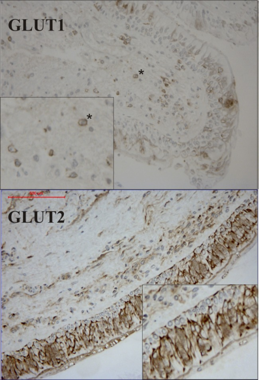 Immunohistochemical staining of glucose transporters (GLUT1) and (GLUT2) in bronchial biopsies obtained from a healthy subject. The upper panel shows GLUT1 staining with distinct cell membrane staining associated with lymphocytes within the submucosa (*). The lower panel demonstrates GLUT2 staining associated with the apical epithelium. The inset provides a magnification of the epithelium illustrating diffuse cytoplasmic staining, with more pronounced staining around the nuclear membrane.