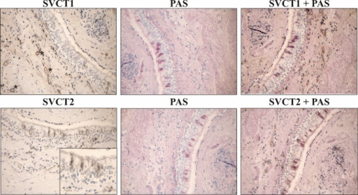 Immunohistochemical staining of sodium-ascorbate cotransporters (SVCT1) and (SVCT2) in bronchial biopsies. Upper left: SVCT1 was found present in blood vessels. Lower left: SVCT2 was found present in blood vessels and in the apical airway epithelium. Middle: Staining of mucins in goblet cells by Periodic acid-Schiff (PAS) staining. Upper and lower right: Consecutive sections from the same subject. SVCT2 apical epithelial staining largely localised to goblet cells.