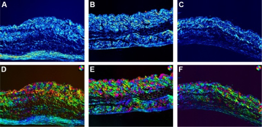 Polarized light microscopic pictures of skins.Notes: Birefringent structures in unstained skins. (A) Untreated skin; (B) skin treated with ethosomal cataplasm; (C) skin treated with conventional cataplasm. Orientation (independent polarization) pseudocolor microphotographs (100×) of unstained skin: (D) untreated skin; (E) skin treated with ethosomal cataplasm; (F) skin treated with conventional cataplasm. The magnifications of (A–F) are all 100×.