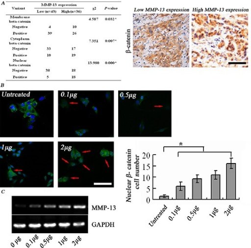 MMP-13 induces nuclear translocation of β-catenin(A) Left panel: higher β-catenin+ levels in cytoplasm and nucleus are seen in melanoma tissues with high MMP-13 expression than in those with low MMP-13 expression. *P < 0.05, bar: 100 μm. (B) β-catenin immunofluorescence staining shows that adding MMP-13 to A375 cell culture medium induces dose-dependent nuclear translocation of β-catenin, from cell membranes in the untreated control group. Number of tumor cells with positive nuclear staining (red arrow) varies with MMP-13 concentration, which is most obvious at 2 μg/ml. *P < 0.05, compared with untreated controls (n = 3). Bar: 50 μm. (C) After 72 h stimulation with exogenous MMP-13, A375 melanoma cells show dose-dependent increase in MMP-13 mRNA.