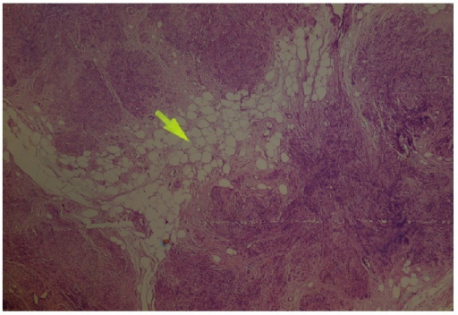 The figure shows spindle-shaped smooth muscle cell proliferation admixed with mature adipocytes (arrow) (HE&40).