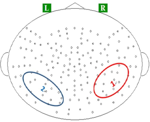 Locations of regions of interests (ROIs) on (1) the right temporoparietal region, and (2) left temporoparietal region.