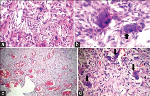 (a and b) Composite photomicrographs of H and E stained section showing the proliferation of spindles cells in fibrous stroma and psammoma bodies with osteoblastic rimming (c and d) showing blood filled spaces and multinucleated giant cells on the periphery of the blood vessels; features indicative of an aneurysmal bone cyst (H and E stained, magnification ×10)