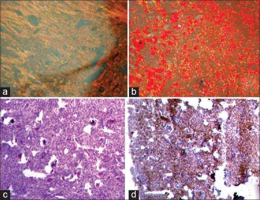 (a-d) Composite photomicrographs of Picrosirius Red stained section (a) under the polarizing microscope showing fibrous stroma which has loose aggregations of connective tissue fibers and (b) the psammoma bodies with densely packed collagen (Picrosirius Red, original magnification ×10). (c) H and E stained section showing spindles cells and psammoma bodies in fibrous stroma and (d) Immunohistochemistry with anti-osteonectin showing positivity for spindle shaped cells and negative for Psammoma bodies. (original magnification × 40)