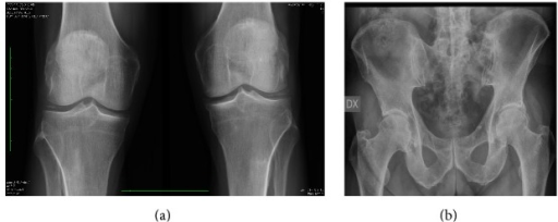 Conventional X-ray of knees (a) and hips (b). The figure shows a picture of osteoarthritis associated with calcifications in menisci (a) and in the soft tissues near the hip bilaterally (b).