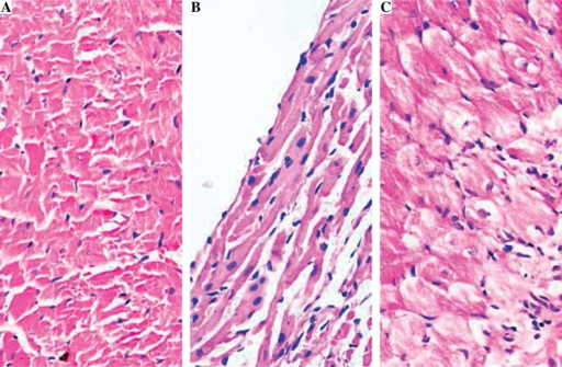 Histopathological analysis of rat myocardial tissues by HE staining (original magnification 400×). A) Control group; B) EAM group; C) Fenofibrate group