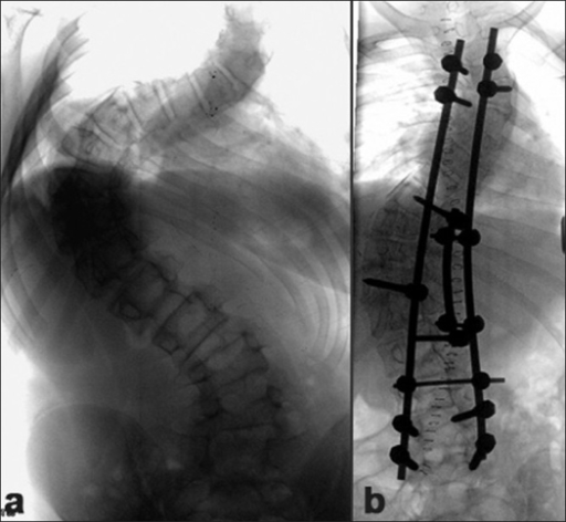 (a) Pre-operative X-ray of dorsal, lumbar spine including lumbosacral junction (anteroposterior view) of a 15 year old female with rigid Lenke Type 4C curve having a major Cobb's angle is 104° (b) post-operative radiograph showing correction achieved with use of a three rod technique. Postoperative major Cobb's is 48°
