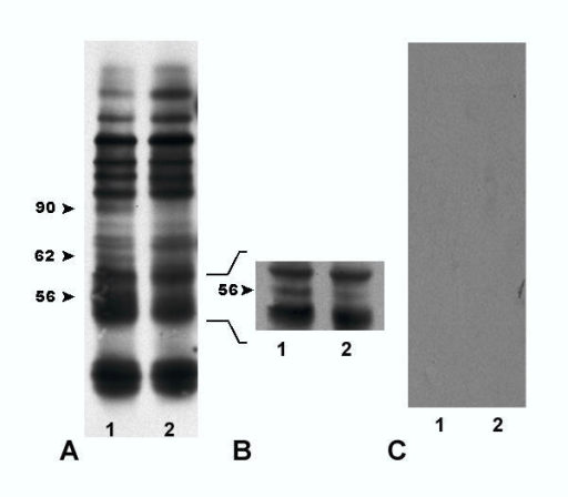 (A, B) Western blots with 100 zona free germinal vesicle intact oocytes (lane 1) and 100 zona free unfertilized oviductal oocytes (lane 2) probed with 10 μg/ml of LCA and (C) western blot with 50 zona free germinal vesicle intact oocytes (lane 1) and 50 zona free unfertilized oviductal oocytes (lane 2) probed with 10 μg/ml of LCA preincubate with α-D-methyl-mannopyranoside followed by HRP-streptavidin. (A) Same LCA blotting pattern was found in six separate experiments. (B) Same LCA blotting pattern was found in two separate experiments. (C) This control was run separately three times.