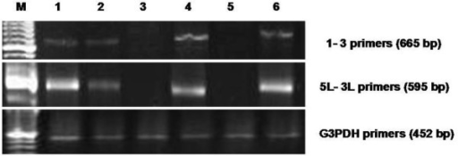 Amplification of MMTV-like env gene sequences in lung samples. Agarose gel electrophoresis of the 665-bp PCR product using primers 1-3 (top panel). The 595-bp PCR product using the 5L-3L primers (middle panel). As a PCR control, we used G3PDH primers to amplify a 452-bp product (bottom panel). Lane M contains a marker; lane 1 is INER51; lane 2 is INER6; lane 3 is IN-9; lane 4 is HZ-14; lane 5 is HZ-19; and lane 6 is HZ-101.