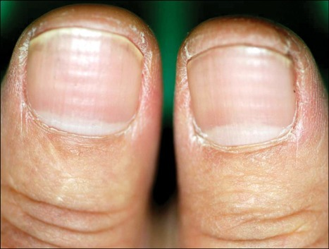 Both Thumbnails Showed Multiple Transverse Bands Of White Discoloration And Depressions The Nail Plates