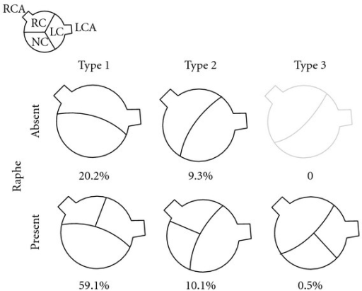 The classification and incidence of bicuspid aortic valves according to site of cusp fusion.