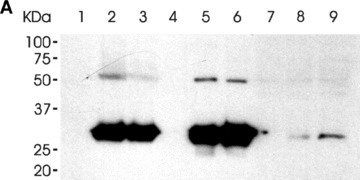 The binding of the LH3 N-terminal fragment and its glycosyltransferase-deficient counterpart on HT-1080 cell surfaces. (A) Western blot analysis after incubation with the hLH3N1 antibody: lanes 1–3 are cell pellets from untreated cells, DXD fragment treated cells and wild-type LH3 N-terminal fragment treated cells, respectively, demonstrating that both fragments (30 kD) bound to cell membranes; lanes 4–6 are medium samples purified on a Nickel column from the untreated cells, DXD fragment-treated cells and LH3 N-terminal fragment-treated cells, respectively, showing the same amount of the fragments (30 kD) used in all experiments. Lanes 7–9 are cell lysates purified on a Nickel column from untreated cells, DXD fragment treated cells and LH3 N-terminal fragment-treated cells, indicating trace amount of the fragments (30 kD) taken into the cells. (B) Immunofluorescence staining of non-permeabilized cells (A–C: untreated; D–F: DXD treatment; G–I: LH3N treatment) by the affinity-purified PLOD3 antibody (green colour, A, D and G), Wheat germ agglutinin (cell surface marker, red colour, B, E and H), and Hoechst 33258 (nuclei marker, blue colour). Parts C, F and I show the overlapping of the LH3 staining with the WGA staining on the cell surface (yellow colour, indicated by arrowheads). Untreated cells (C) are used as a background control, showing a small amount of endogenous LH3 on the cell surface. The cells treated with the DXD fragment (F) or the LH3N fragment (I) show much more overlap of the LH3 with the WGA, indicating that both fragments are bound to the cell surface.