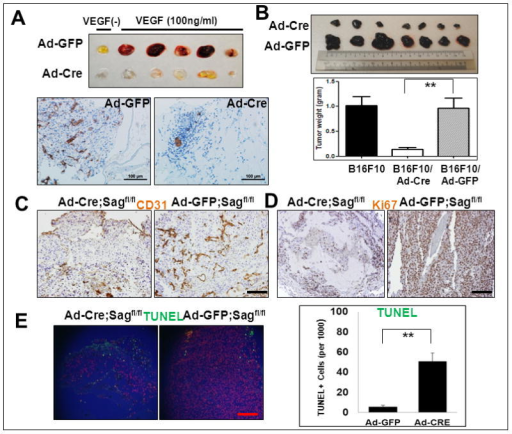 Sag EC deletion inhibits in vivo angiogenesis and tumorigenesisSagfl/fl mice were injected with matrigel mixed with Ad-Cre (on the left flank) or Ad-GFP control (on the right flank) in the presence or absence of VEGF. After 7 days, mice were euthanized and the matrigel plugs were harvested and photographed (A, top panel), then fixed, sectioned and stained with CD31 antibody (A, bottom panels). Sagfl/fl mice were injected with B16F10 mouse melanoma cells (5×105) mixed with Matrigel and Ad-Cre or Ad-GFP as indicated (right before injection without pre-virus infections). Twelve days later, tumors were harvested and photographed (B, left panel). Shown is mean ± SEM from 7 mice in each group, except B16F10 only control group (n=3) (B, right panel). The tumor tissues were fixed, sectioned and stained for CD31 (for blood vessels, C), Ki67 (for proliferation, D) and TUNEL assay (for apoptosis, E). Scale bar represents 100 μm.