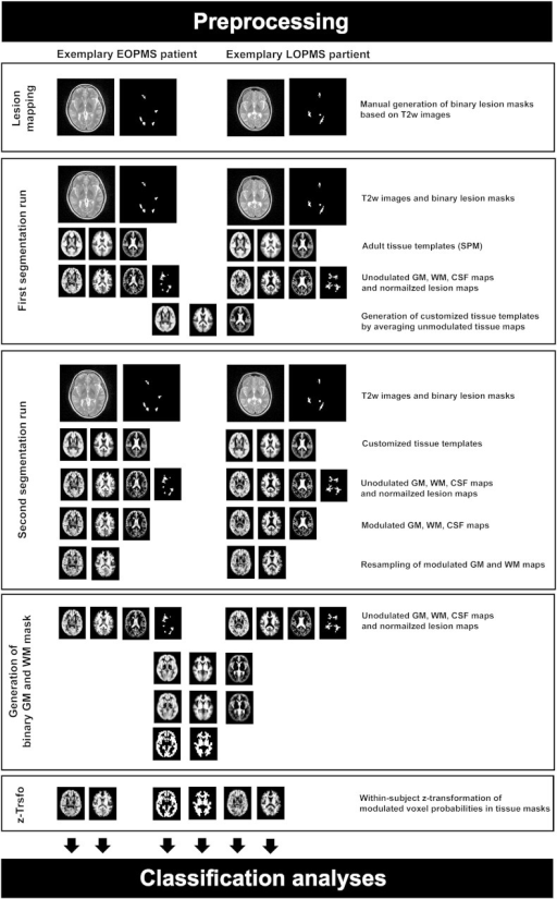 Preprocessing of MRI data. Starting with the second segmentation run, preprocessing was performed separately for each of the pairs of groups. The figure shows two exemplary subjects belonging to the early onset PMS vs. later onset PMS pair. EOPMS, early onset pediatric MS; LOPMS, later onset pediatric MS; T2w, T2-weighted; z-Trsfo, z-transformation.