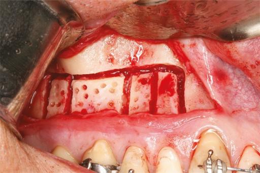 Corticomia dental
