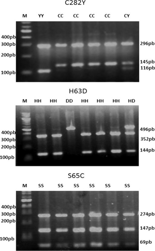 PCR-RFLP (restriction fragment length polymorphism) blots of the C282Y, H63D and S65C mutations. Six patients are represented. M: DNA marker 100bp (Invitrogen). Band sizes are indicated on the left and right of the panel. Homozygous allele of C282Y (fragments 296bp, 116bp, 29bp); heterozygous allele of C282Y (fragments 296bp, 145bp, 116bp, 29bp); homozygous allele of H63D (only fragment of 496bp); heterozygous allele of H63D (fragments 496bp, 352bp and 144bp). Wild allele S65C (fragments of 274bp, 147bp, 69bp and 6bp).