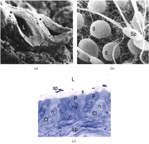 Scanning electron micrograph of the epididymal cauda during the period of regression. (a) Low magnification image showing epididymal sections (asterisk) with reduced luminal diameter in relation to the observed during the active period. L: lumen. SEM: ×300. (b) In the epididymal lumen at higher magnification is observed low sperm content (sp) and abundant germ cells (g) detached. SEM: ×6000. (c) Semithin cut obtained in the same region of the epididymal cauda showing principal cells (P) and numerous clear cells (Cl) with lax and irregular nuclei (n). Note the low content of sperm (sp) in the lumen (L) and increased thickness of the lamina propria (Lp), in relation to the observed during the active period. s stereocilia. TB: ×1000.