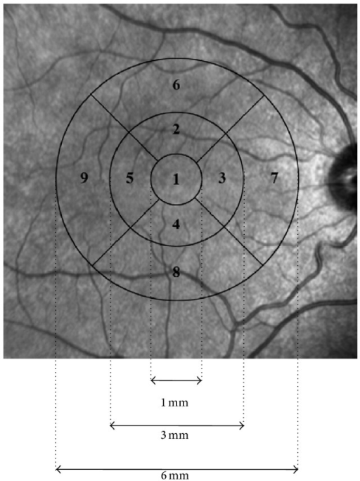 ETDRS grid used for reporting retinal thickness [47].
