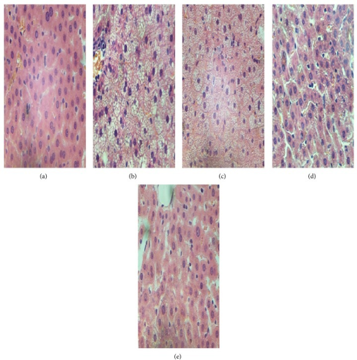 The results of paraffin section and H&E staining in vivo, ×400. (a) Chow fed rat, (b) HFD model rats, (c) GGQLDL treatment rats, (d) GGQLDH treatment rats, and (e) ROS treatment rats.