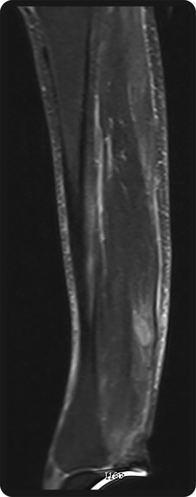 Focal hyperintense signal in the gastrocnemius muscle on sagittal short T1 inversion recovery image of the left calf.