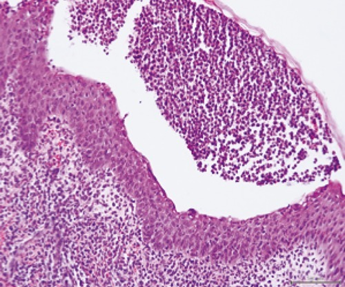Biopsied specimen of skin shows a confluent neutrophilic infiltrate in the dermis and epidermis.
