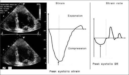 Strain and strain-rate imaging from the mid-inferoseptal myocardial segment from a study subject. Peak systolic strain is the peak percentage long-axis shortening; peak systolic strain-rate is the peak rate of shortening; peak diastolic strain-rate is the peak rate of length.