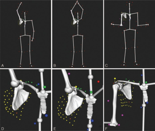 Examples of computed postures on a right shoulder showing the markers setup (small colored spheres) and a virtual skeleton used to better visualize the motion as a whole: (A) maximum flexion, (B) maximum abduction in the scapular plane, (C) maximum external rotation with elbow at side, (D), (E), and (F) show a zoom in the shoulder for each posture (A), (B), and (C), respectively.