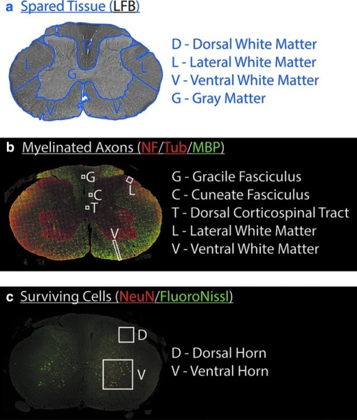 Histological regions of interest. (a) To measure area of spared tissue in Luxol fast blue (LFB)-stained sections, the dorsal, lateral, and ventral white matter and the gray matter were segmented. The lateral white matter was separated from the dorsal and ventral white matter by drawing straight lines along the lateral sides of the dorsal and ventral horns. (b) To calculate density of myelinated axons in neurofilament H/β-tubulin/myelin basic protein-stained sections, several boxes (65 μm × 65 μm) were placed. One box was positioned in the center of the gracile fasciculus. Another box was positioned in the middle right of the dorsal corticospinal tract. A third box was positioned in the right cuneate fasciculus 50 μm away from the gracile fasciculus and the dorsal corticospinal tract. A fourth box (100 μm × 100 μm) was positioned in the right lateral white matter next to the dorsal horn. One box (100 μm wide) was positioned in the right ventral white matter medial from the ventral nerve root. The size and position of the boxes could be adjusted to avoid large artifacts and horizontal axons. (c) To count the number of surviving cells in NeuN/Fluoro Nissl-stained sections, images were taken in the right dorsal horn (20x) and the right ventral horn (10x) with their sides aligned with the edges of the horns.