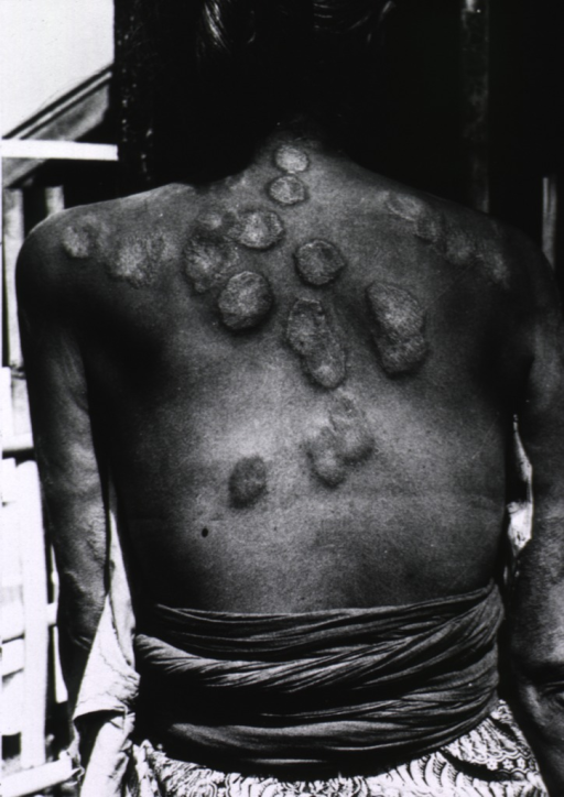 <p>A woman, naked to the waist, is showing the lesions resulting from leprosy on her back and arms.</p>