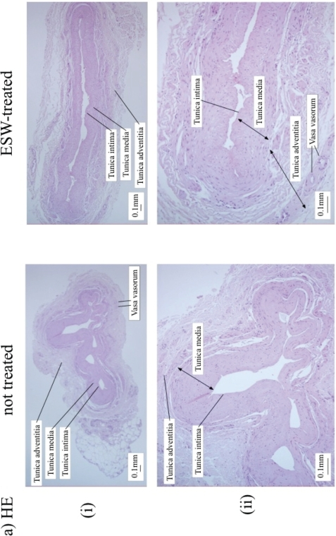 histopathology of varicose vein  vena saphena magna  vs