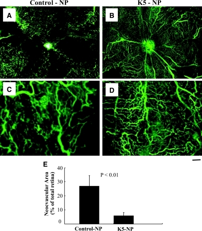 Effect of K5-NP on retinal neovascularization in OIR rats. K5-NP was injected into the vitreous of the right eyes (8.8 μg/eye) and the same amount of control-NP into the contralateral eyes of seven OIR rats at P12. Retinal vasculature was examined using fluorescein angiography at P18 as described in methods. A and C: Representative retinal angiographs from the eyes injected with control-NP; B and D are representative angiographs from the K5-NP–injected eyes (40× in A and B; 100× in C and D). Scale bar: A and B, 100 μm; C and D, 40 μm. E: Retinal neovascularization was quantified by measuring the neovascular area in the retina and expressed as percent of the total retina area (mean ± SD, n = 7). The difference of the neovascular area was compared with the contralateral eyes using paired Student's t test. (A high-quality digital representation of this figure is available in the online issue.)