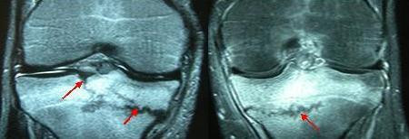 Coronal MR images show a fracture line at the medial side of left tibia which extends into the lateral half. Fracture at the right side extends into the articular surface.