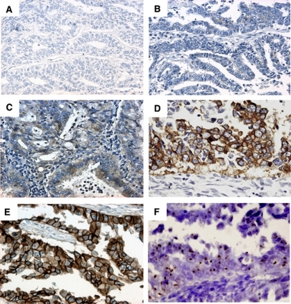 Immunohistochemistry of HER-2 in endometrioid-type endometrial cancer. Representative results of each score are shown (A: score 0; B: score 1; C: score 2 ( × 200) and D: score 3 ( × 400)). The definition of each score is described in Materials and Methods. A breast cancer specimen (E) with HER-2 expression was used as the positive control for appropriate staining conditions ( × 400). (F) CISH analysis of the case (D) showing high levels of HER-2 amplification ( × 400). Brown dots show the large gene copy clusters.