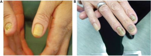 Appearance of nails. All of the patient's nails were yellow. July 2004 (A), and February 2010 (B).