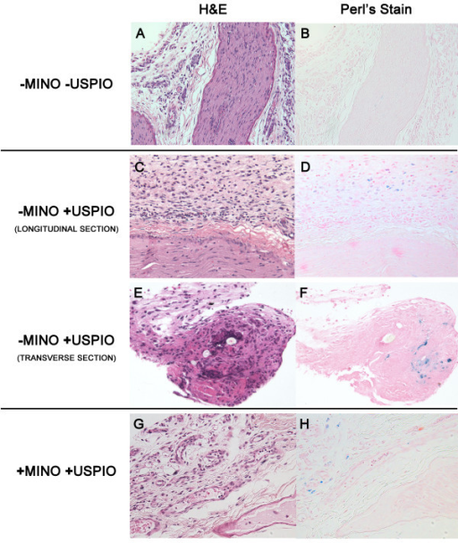 Histology verifies MR imaging findings with perineural iron-laden macrophages demonstrated only in animals injected with USPIOs without minocycline. Paraffin sections were prepared from the distal segment of the nerve, just proximal to the ligature, and stained with (A, C, E, G) hematoxylin and eosin (H&E) to provide morphological detail and with (B, D, F, H) Perl's stain, which stains iron blue. (A, B) Control (−USPIO) longitudinal sections through the neuroma and surrounding perineural tissue harvested from the site of the neuroma show no iron staining. (C-F) Tissues harvested from SNI animals injected with USPIOs. At 200X magnification, the axial section and the longitudinal section (C, D) and an axial section (E, F) from a different animal show areas of increased iron staining in the perineural tissues. These iron containing cells demonstrate histologic characteristics of macrophages. At 200x magnification, iron and H&E stained axial sections from animals treated with minocycline and USPIOs (+MINO-USPIO) show localization of iron containing cells to the perineural tissue, albeit to a qualitatively lesser extent than the –MINO+USPIO treated sections.