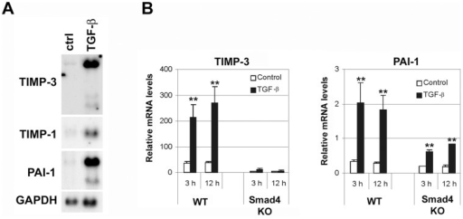 TGF-β induces TIMP-3 gene expression in a Smad-dependent manner in fibroblasts.(A) Human gingival fibroblasts were treated with TGF-β1 (5 ng/ml) for 24 h. Thereafter, total cellular RNAs were harvested and analyzed for the expression of TIMP-3, TIMP-1, PAI-1, and GAPDH mRNAs by Northern blotting. (B) EF7WT and EF7Smad4KO (Smad4 deficient) cells were treated with TGF-β1 (5 ng/ml) for 3 h and 12 h or left untreated (control). Total RNA was extracted and TIMP-3 and PAI-1 gene expression was determined by qRT-PCR. mRNA expression (mean+SD) is shown relative to 18S ribosomal RNA (n = 4). *p<0.05, **p<0.005 (t-test) for TGF-β vs. control cultures.