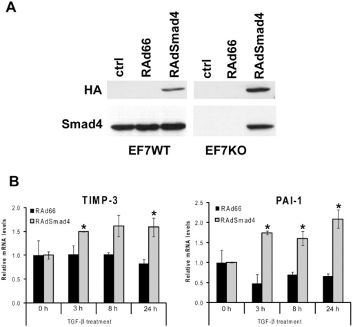 Expression of Smad4 rescues the TGF-β response of TIMP-3 and PAI-1 in Smad4  fibroblasts.(A) EF7WT (wild-type) and EF7KO (Smad4 deficient) fibroblasts were transduced with recombinant adenovirus for HA-tagged Smad4 (RAdSmad4), or with empty control virus RAd66 at MOI 100 (EF7WT) or 300 (EF7KO). After 36 h incubation cell lysates were harvested and analyzed by Western blotting to detect the levels of endogenous and exogenous Smad4. Anti-HA antibody was used to detect adenovirally delivered Smad4 (upper panel) and anti-Smad4 to detect endogenous Smad4 (lower panel). (B) EF7KO fibroblasts were infected with adenoviruses RAdSmad4 or RAd66. After 36 h incubation the cells were stimulated with TGF-β1 (5 ng/ml) for different periods of time, as indicated. Total RNA was extracted and analyzed by qRT-PCR to determine TIMP-3 and PAI-1 mRNA levels. mRNA expression (mean ± SEM from two separate experiments, both run with duplicates) is shown relative to 18S ribosomal RNA. *p<0.05, t-test).