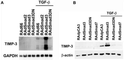 Smad3 mediates TGF-β-elicited induction of TIMP-3 expression in human fibroblasts.(A) Normal human gingival fibroblasts were transduced with recombinant adenoviruses for Smad2 (RAdSmad2), Smad3 (RAdSmad3), dominant negative Smad3 (RAdSmad3DN), or with empty control virus (RAd66) at MOI 500, and incubated for 18 h. Thereafter, the cells were treated with TGF-β1 for 24 h. The cell layers were harvested for RNA extraction and analyzed for the expression of TIMP-3 or GAPDH by Northern blot hybridizations. (B) Normal human gingival fibroblasts were infected with RAdSmad3, RAdSmad3DN, adenovirus for Smad7 (RAdSmad7), or with empty control virus (RAdpCA3) as in (A). Cells were treated with TGF-β1 for 24 h, the cell layers harvested and analyzed for the expression of TIMP-3 by Western blotting. Equal loading was confirmed by stripping and reprobing the same filter for β-actin.