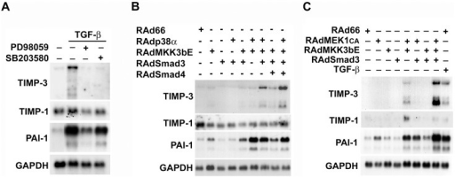 Smad3, p38α and ERK1/2 cooperate in the induction of TIMP-3 gene expression in human fibroblasts.(A) Human gingival fibroblasts were serum starved for 18 h, and treated for 1 h with PD98059 (30 µM), or SB203580 (10 µM), specific chemical inhibitors for MEK1 or p38, respectively. Subsequently, TGF-β1 (5 ng/ml) was added, and the cultures incubated for 16 h. Total cellular RNAs were harvested and analyzed for the levels of TIMP-3, TIMP-1, PAI-1 and GAPDH mRNAs by Northern blot hybridizations. (B) Human gingival fibroblasts were transduced with recombinant adenoviruses for wild-type p38α (RAdp38α), constitutively active MKK3b (RAdMKK3bE), Smad3 (RAdSmad3), Smad4 (RAdSmad4), or with empty control virus (RAd66) at MOI 500, and incubated for 24 h. Total cellular RNA was analyzed with Northern blot hybridizations for the expression of TIMP-3, TIMP-1, PAI-1, and GAPDH mRNAs. (C) Human gingival fibroblasts were transduced with recombinant adenoviruses for constitutively active MEK1 (RAdMEK1CA), constitutively active MKK3b (RAdMKK3bE), Smad3 (RAdSmad3) and control virus RAd66 as in (B). Total cellular RNA was analyzed with Northern blot hybridizations for the expression of TIMP-3, TIMP-1, PAI-1, and GAPDH mRNAs.