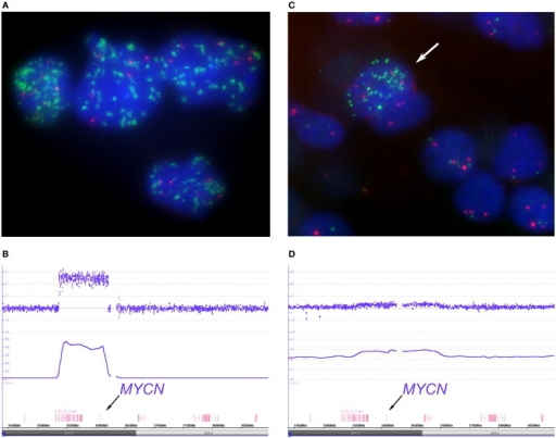"Depicts examples of homogenous ""classical"" and heterogeneous MYCN amplified tumors. The FISH picture, (A) (MYCN FISH probe in green, 2p probe in red), shows tumor cell nuclei with a varying number of MYCN signals ranging from approximately 30 signals up to hundreds distributed randomly within the nuclei. The large size of some of the MYCN hybridization spots can be explained by repeated amplicon units. The SNParray profile of a segment of the short arm of chromosome 2 from a homogeneously amplified neuroblastoma is given in (B) which shows a clear peak for the MYCN locus (copy number ~48). (C,D) Examples of a so called hetMNA tumor. In the I-FISH picture (C), one tumor cell nucleus clearly displays MYCN amplification (arrow), while the others do have a balanced number of MYCN and reference probe hybridization signals. The SNParray profile (D) shows an example of a heterogeneous MYCN amplified tumor with much lower peaks (copy number < 3 of the smooth signals, lower line) than compared to the profile given in (B) and could easily be missed if the number of tumor cell nuclei with MYCN amplification is too small in the sample under examination."